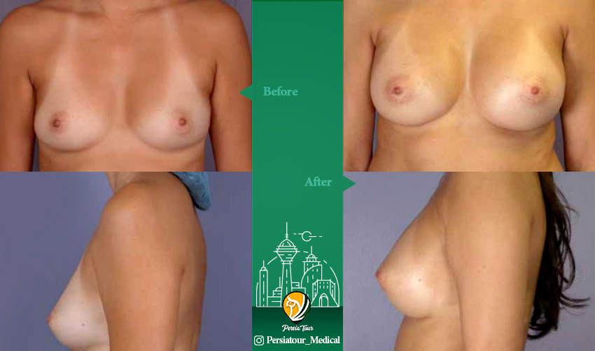Breast augmentation Befor & After