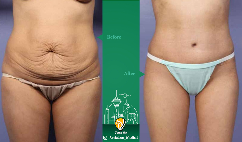 tummy tuck befor after