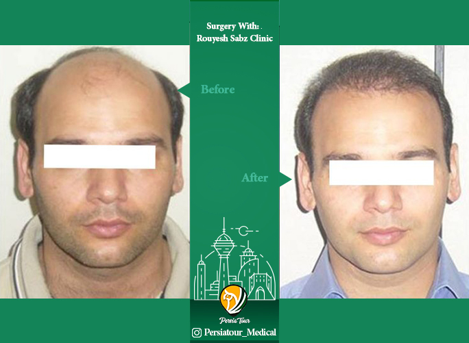 hair transplant befor after