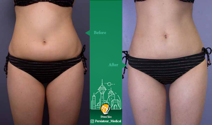 liposuction befor after