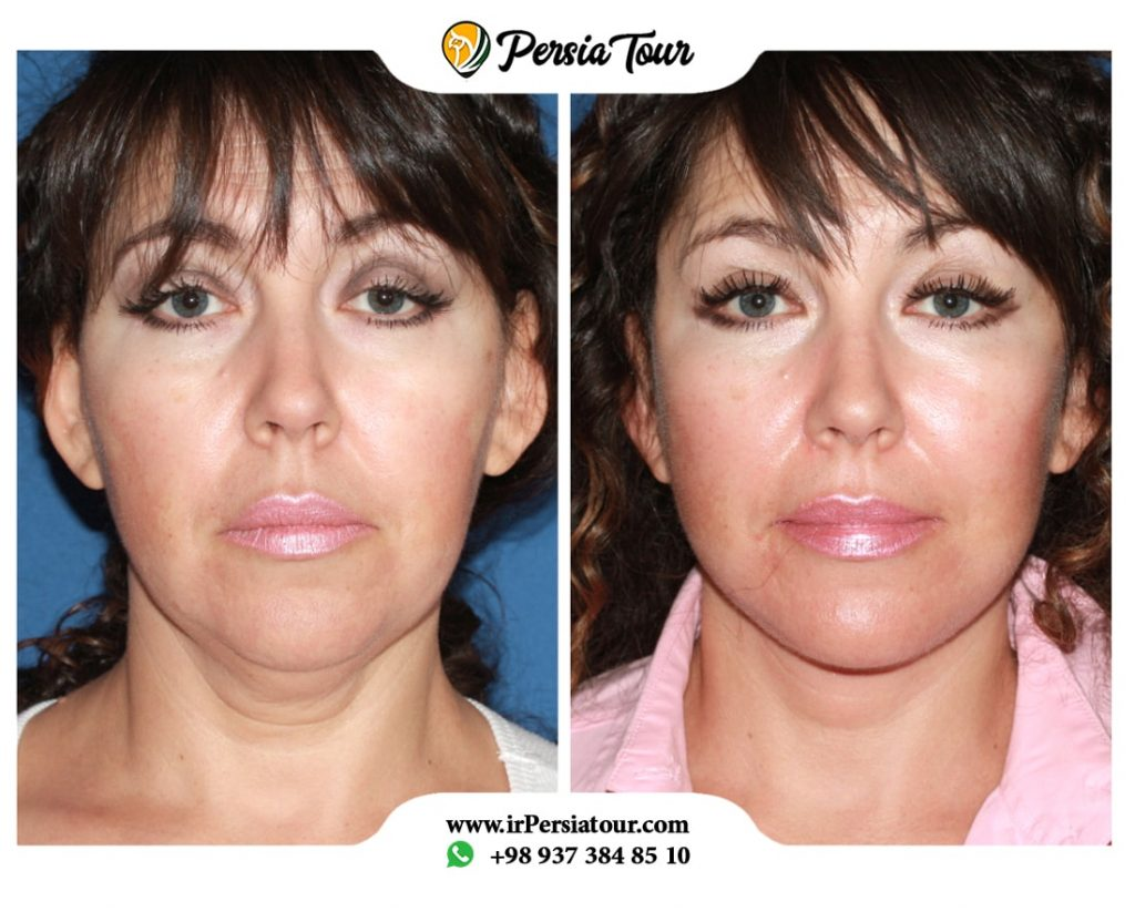 face lift sugery