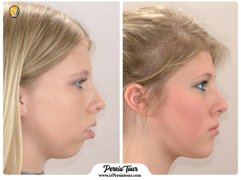 Mentoplasty Before and After