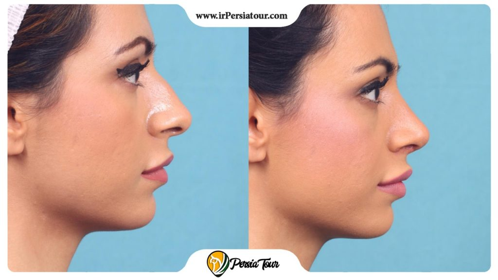 Different types of nasal surgery