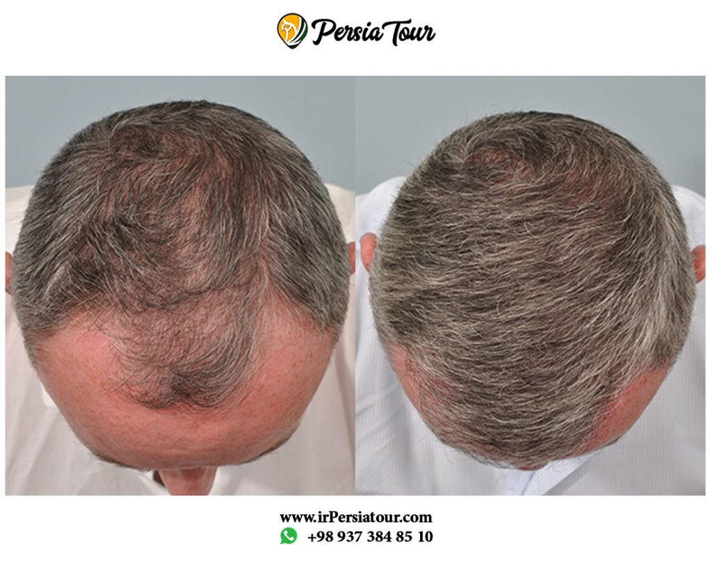 FIT hair transplantation