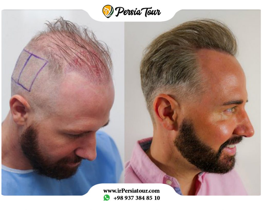 Micro Fit hair transplantation
