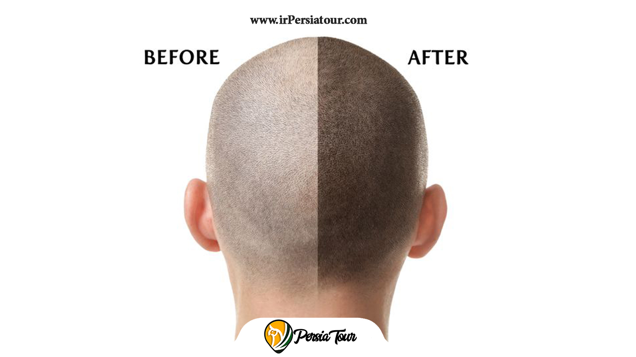 13 Before after of hair treatment - Irpersiatour