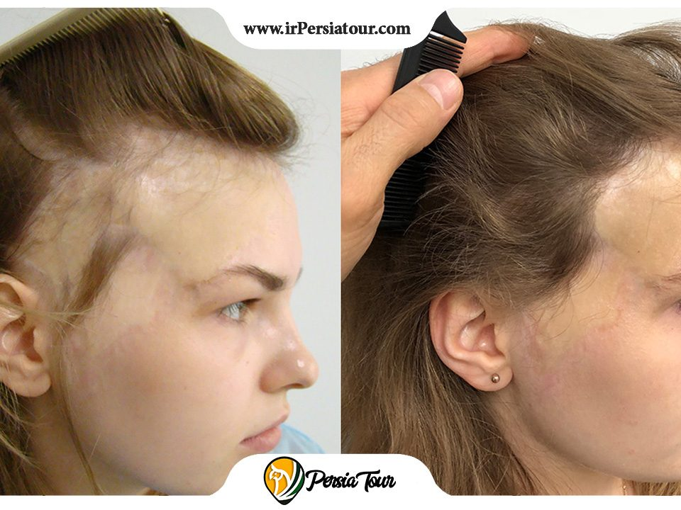 Hair transplant at the site of a burn